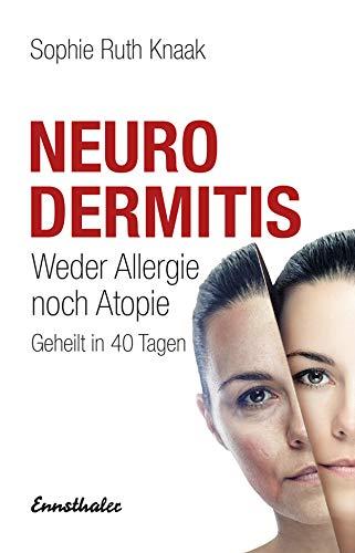 Neurodermitis: Weder Allergie noch Atopie - Geheilt in 40...